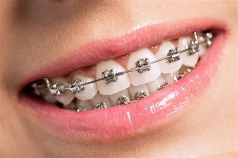 Stainless steel braces